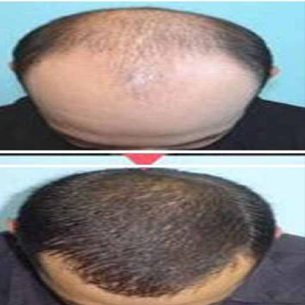 Aumento del cabello rapido
